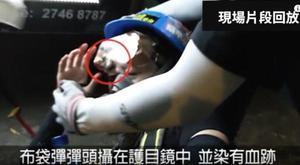 影片證據 港少女爆眼一刻布袋彈插護目鏡
