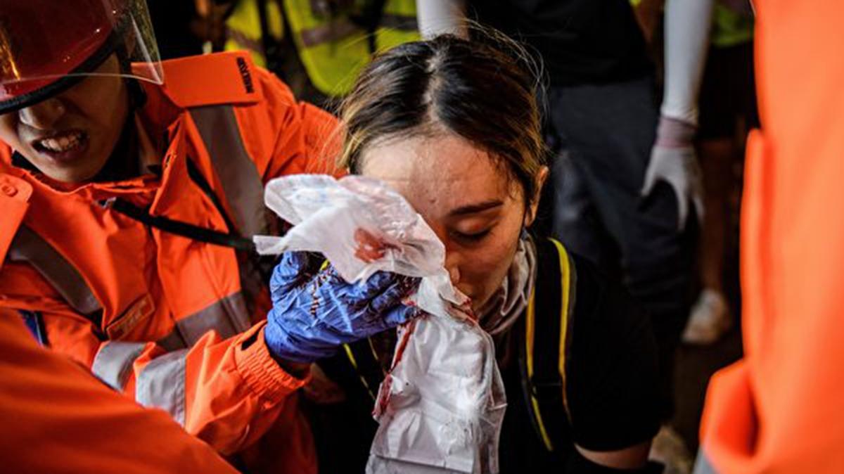 8月11日,警察在灣仔發射催淚彈,一女孩的右眼被射中。 (ANTHONY WALLACE/AFP/Getty Images)