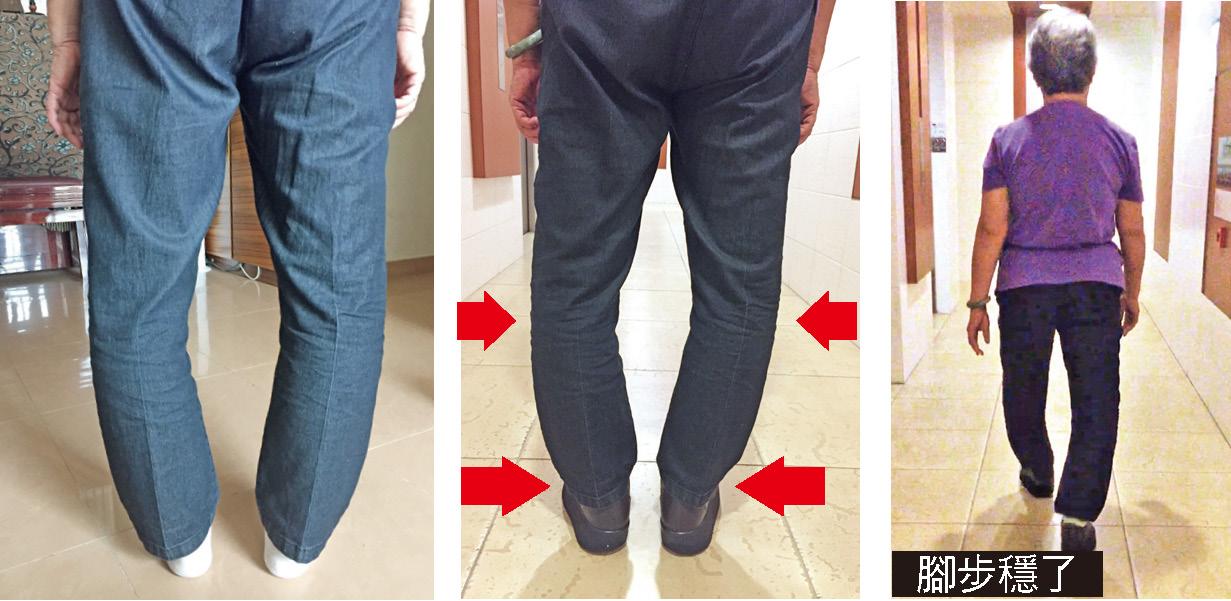 左:李女士的O型腳及雙腳長短不一,導致走路搖擺不穩;中及右圖:穿上Karsten大師製的矯形鞋之後,改善了膝蓋變形,腳步也穩了,行走速度快了。