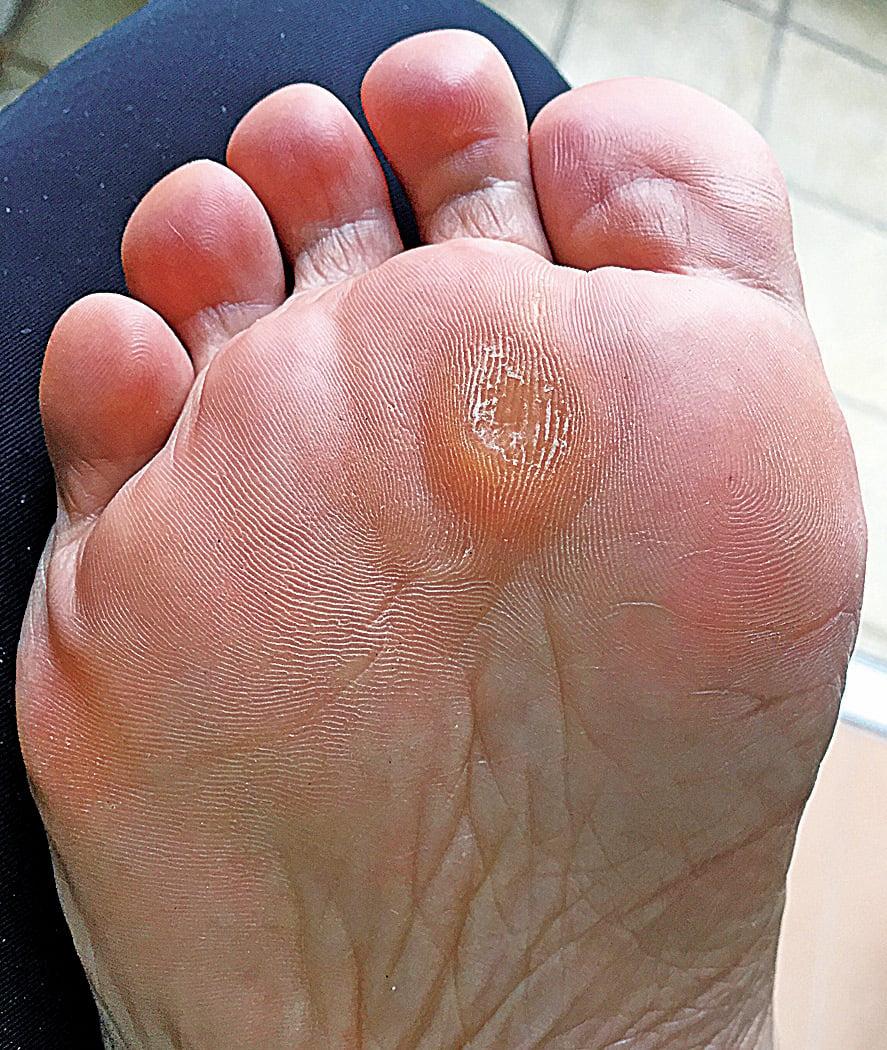 林太因長時間穿著高跟鞋行路,有頗嚴重的「雞眼」。穿上訂製矯形鞋墊之後,痛楚消失了,長時間站立行走都不累也不再疼痛。