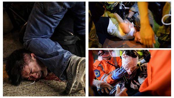 多名反送中示威者被警方打傷。(網絡圖片)