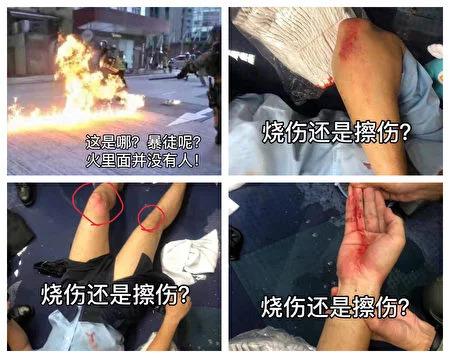 央視播出畫面。網友質疑受傷警員為擦傷,而非燒傷。(網絡圖片)