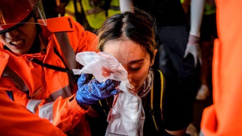 8月11日香港尖沙咀一名到示威現場參與救傷的女子疑被警方發射的布袋彈擊中右眼,面臨失明及毀容的危險。(ANTHONY WALLACE/AFP/Getty Images)