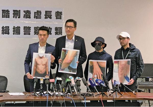 林卓廷昨日召開記者會,指一名62歲男子被軍裝警員連續以酷刑虐待。(駱亞/大紀元)