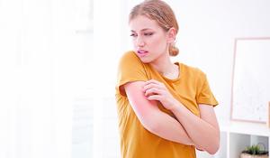 濕疹 為甚麼治不好?
