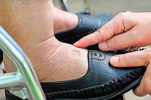 發現腳水腫