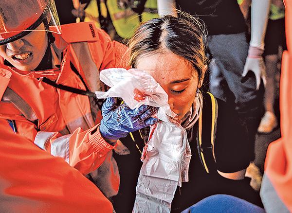 8月11日,一名女自願醫護員在尖沙咀警署對開疑被警方的布袋彈打中右眼,眼球及鼻骨爆裂,血流如注。圖為救護員在現場緊急施救。(Getty Images)