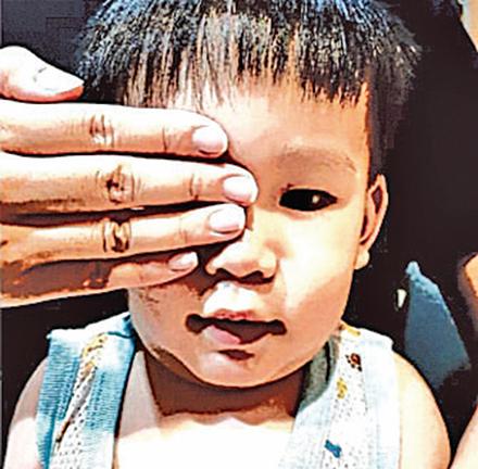 國際社會聲援「#Eye4HK」運動。圖為一名小孩被摀住右眼。(社媒圖片)