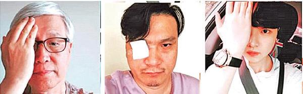 社交媒體上,國際社會民眾貼出手遮右眼或用紗布遮眼的照片,聲援受傷女醫護員及香港「反送中」運動。(社媒圖片合成)