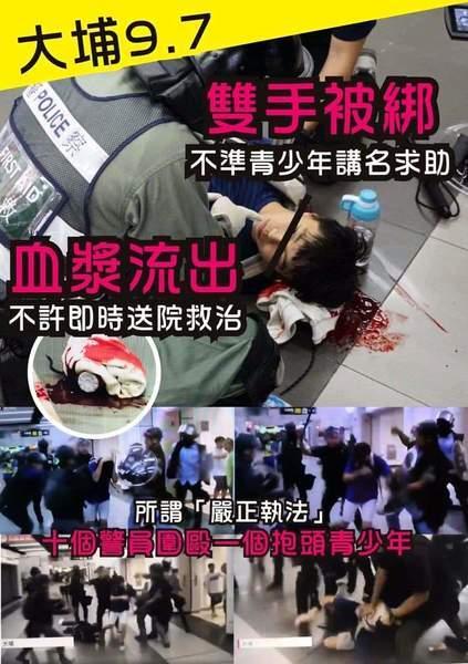 【9.9聯校築人鏈】同校中六生周六被警嚴重毆傷