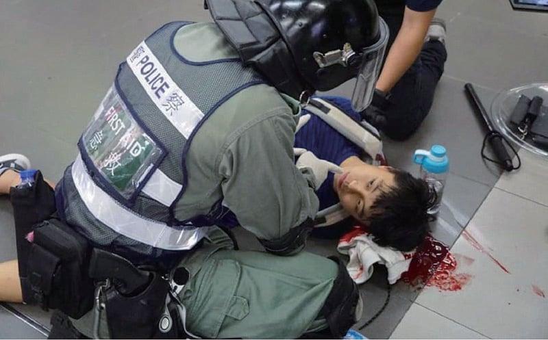 遭警圍毆後腦出血 恐嚇及延醫