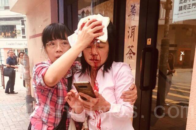 今日下午4點左右法輪功學員廖秋蘭在長沙灣警署附近被襲擊,頭破血流。(安帕/大紀元)