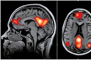 美感在高層腦神經區有統一標準