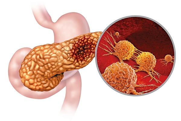胰腺癌研究獲突破 關鍵蛋白忽略變異基因阻癌細胞生長
