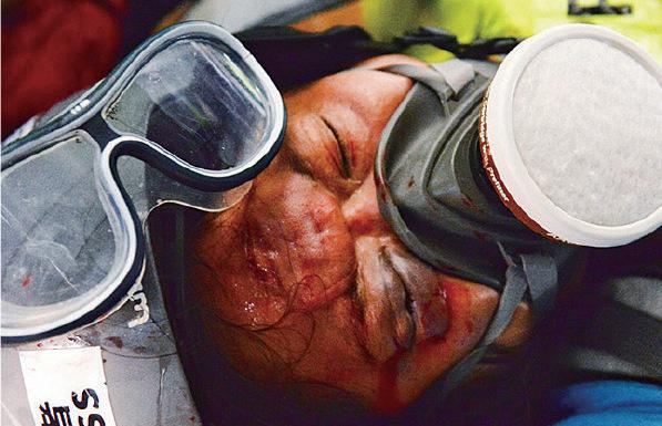 灣仔有採訪記者被射傷頭。(宋碧龍/大紀元)