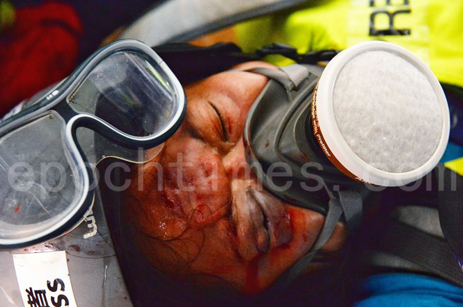 2019年9月29日,「全球連線-共抗極權」遊行活動。香港灣仔,有採訪記者被射傷頭。(宋碧龍/大紀元)