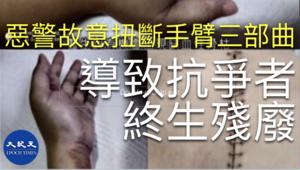 港警故意扭斷抗爭者手臂三部曲 導致終生殘廢