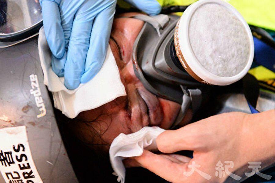 印尼女記者右眼被打爆後 又有9名記者遇襲