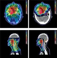 癌症質子療法 令副作用大大降低