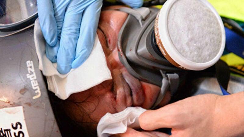 日前在香港採訪「反送中」示威時眼部中彈的印尼女記者英達,經醫治後確認右眼將永久失明。(大紀元)