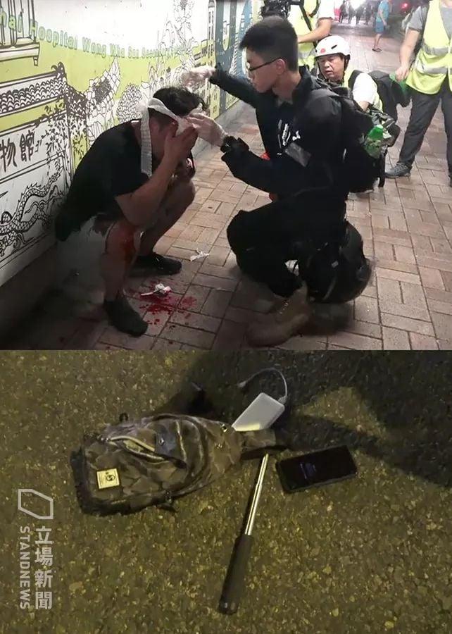 13日晚,在將軍澳一名男子被群毆,被打得頭破血流。從傷者留在現場的物品中有一隻在收縮警棍。(l連登圖片)