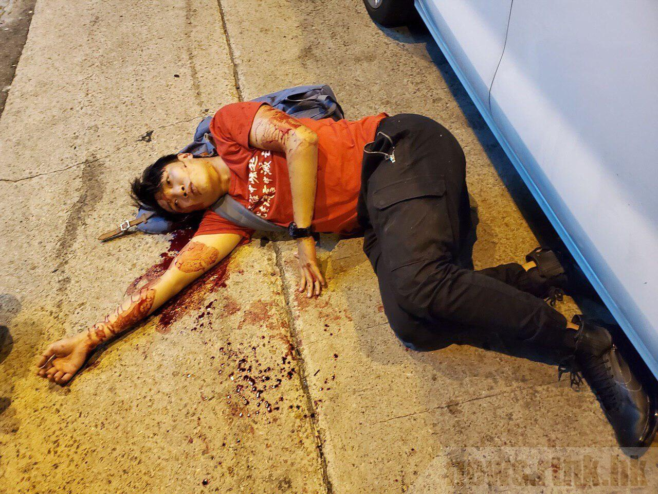 岑子杰遇襲後倒在血泊中,後腦仍在不斷流血。(網絡圖片)