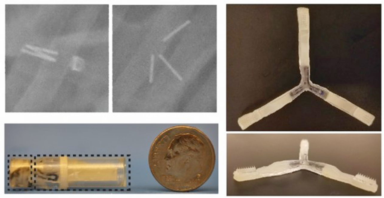 X光圖像顯示三折的微針結構在腸道內打開前後的狀態(左上圖);三折結構打開後可以看到其末端上的微針(右圖);微針結構的整體大小與硬幣的對照(左下圖)。(MIT)