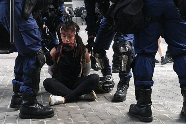 一名女抗爭者被捕,臉上血跡斑斑。(MOHD RASFAN/AFP/Getty Images)