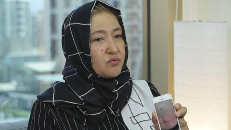 哈薩克籍維吾爾人古力巴哈女士(Gulbahar Jalilova)10月25日在台北接受自由亞洲電台專訪,控訴在集中營465天被餵藥。(自由亞洲電台)