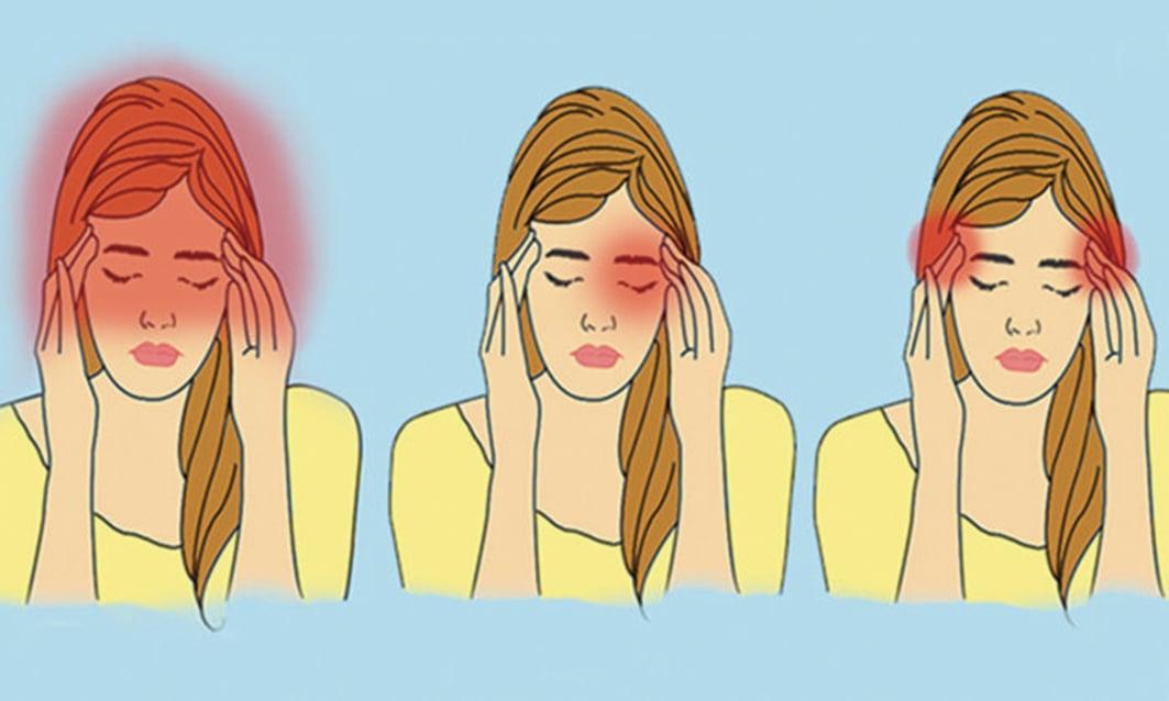 頭痛如果頻繁出現,不僅會影響工作,還會影響日常生活。(Illustration - The Epoch Times)
