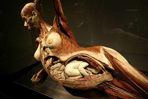 廣泛遭到國際輿論質疑和譴責的屍體標本。孕婦不可能被做死刑處置,這對母子人體標本從何而來呢?(David McNew/Getty Images)