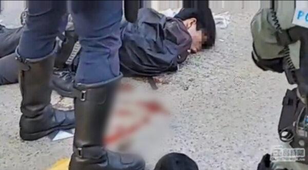 香港中槍男孩腎被打爆 一度失去心跳(影片截圖)