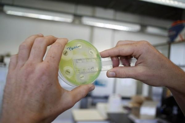 科學家在嘗試尋找新的抗生素。(JORGE DIRKX/AFP/Getty Images)