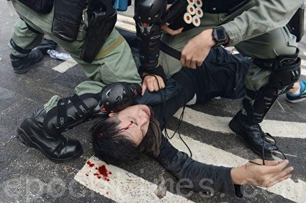 2019年11月12日,在香港中大裏有學生被警察打傷頭部流血。(宋碧龍/大紀元)