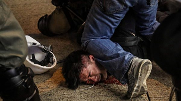 尹輝表示,大陸公安的跪壓方式慣用手是右手,香港警察的慣用手是左手。(大紀元)