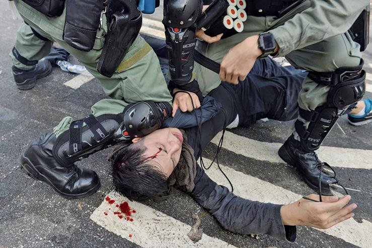 玻利維亞政局的變動,昭示人民的重大勝利、專政的失敗,在香港抗爭不衰之時,莫拉萊斯認輸,給了中共當頭一棒。圖為12日,港人「三罷」行動。在香港中大學生被打暴頭流血。(宋碧龍/大紀元)