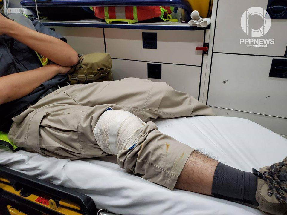 16日凌晨在旺角,PPPN international傳媒一名攝影記者被警方惡意暴力驅趕受傷。(PPPN international Facebook)