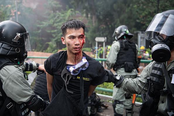 走出理大的抗爭者被港警打得頭破血流。(Laurel Chor/Getty Images)