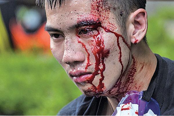 一名抗爭者昨被暴警打到頭破血流,之後被捕帶走。(ANTHONY WALLACE/AFP via Getty Images)
