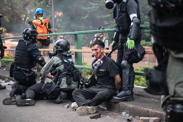 理大的抗爭者突圍,被守住校園外的警方圍捕,有人被打得頭破血流。(Laurel Chor/Getty Images)