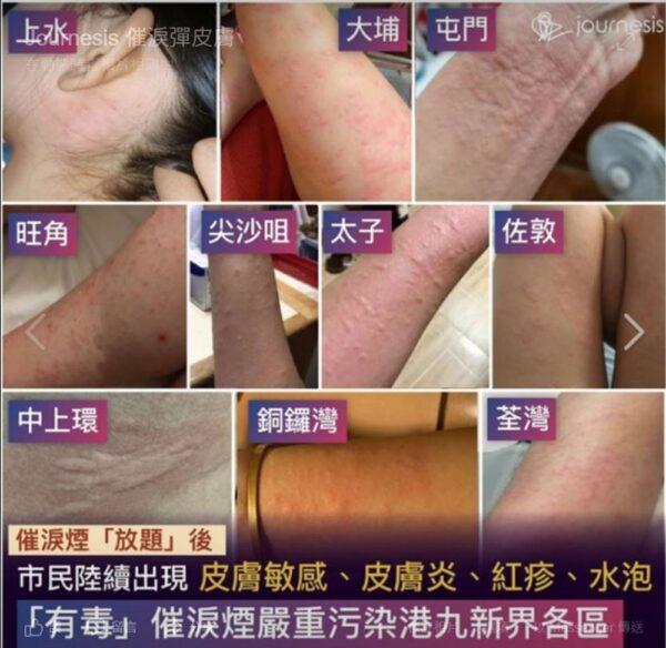 有網友在臉書貼文表示,全港各區「催淚彈吃到飽」,除了當下身感到體不適,事後更出現皮膚傷害後遺症。(圖擷取自Journesis臉書)