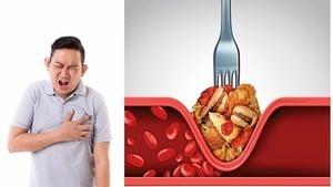 炸物吃太多小心引發心肌梗塞