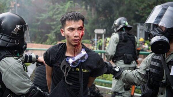 一名從理大出來的男生被港警打得頭破血流。(Laurel Chor/Getty Images)
