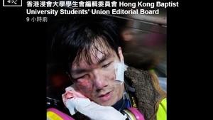 港警襲擊記者 警棍敲頭催淚彈射眼