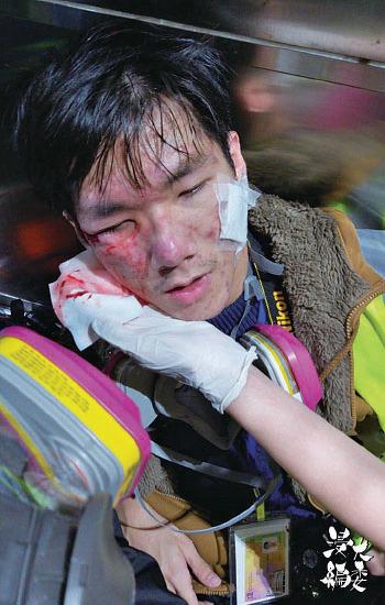 浸大編委一名記者周日於旺角砵蘭街採訪時,被催淚彈射中右臉顴骨,需到送往伊利沙伯醫院治理。(浸大編委Facebook圖片)