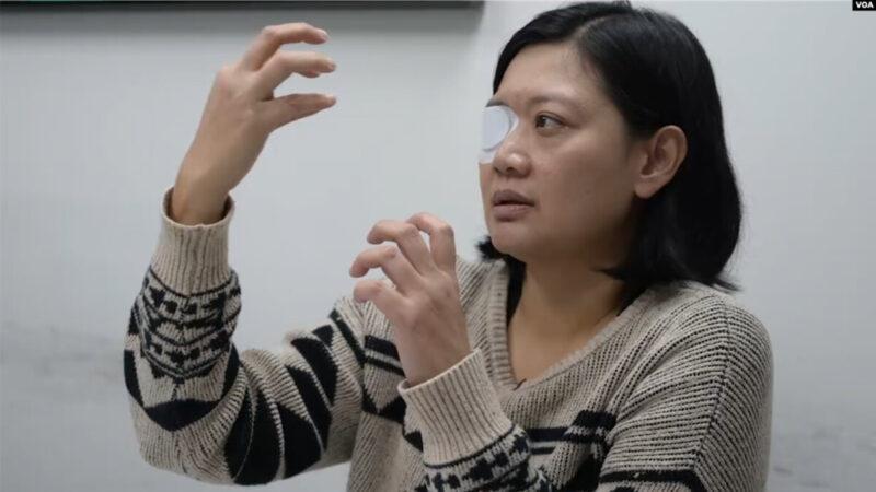 遭遇港警暴力,右眼失明的印尼女記者維比·英達(Veby Mega Indah)(美國之音郁崗拍攝)