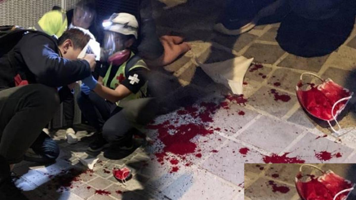 12月24日晚,警務處處長鄧炳強到◇尖沙咀區巡視後,防暴警開始狂射催淚彈及橡膠子彈瘋狂攻擊抗爭人群,有人中彈血流滿面。(臉書圖片)