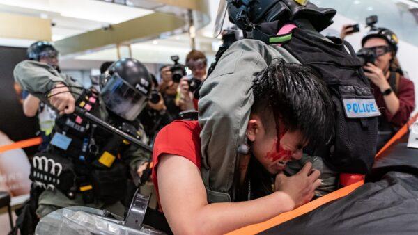 紅衣男子頭部流血。(Anthony Kwan/Getty Images)