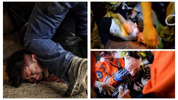 8月11日,抗爭者遭遇更為凶殘的暴力襲擊。(合成圖片)