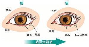 扁康療法系列講座 第三章 眼睛充血發癢——結膜(二十一)